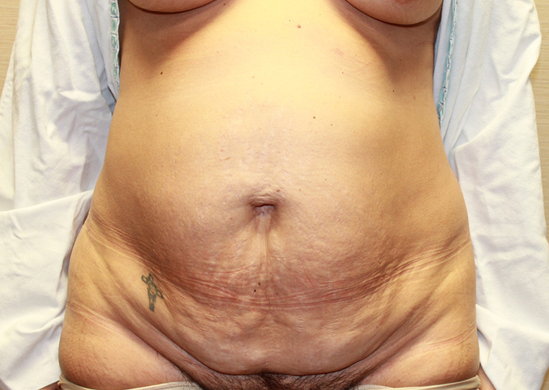 Tummy Tuck Before and After Pictures Cape Girardeau, MO