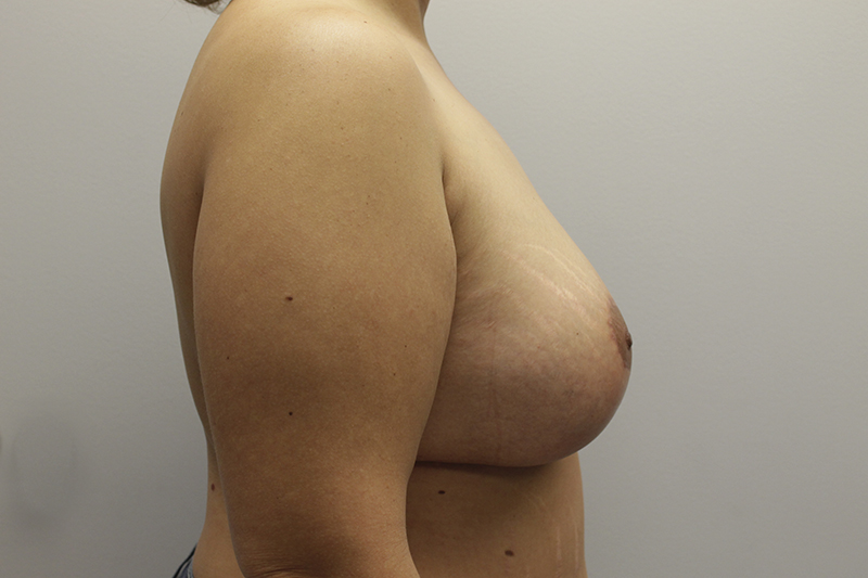 Breast Lift and Augmentation Before and After Pictures Cape Girardeau, MO