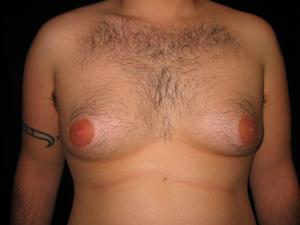 Male Breast Reduction (Gynecomastia) Before and After Pictures Cape Girardeau, MO