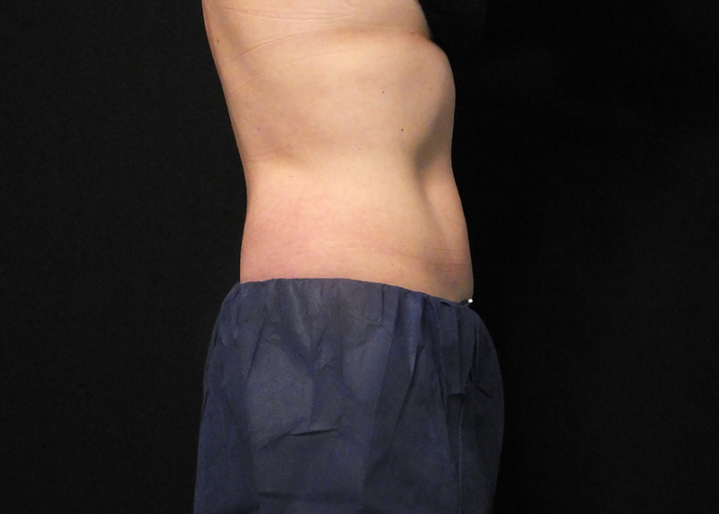 CoolSculpting Abdomen Before and After Pictures Cape Girardeau, MO