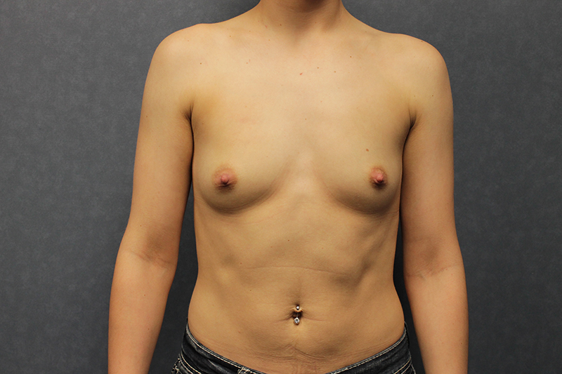 Breast Augmentation Before and After Pictures Cape Girardeau, MO