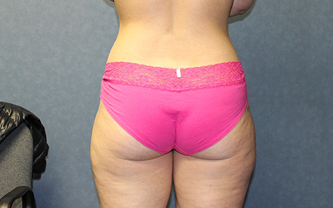 Liposuction Before and After Pictures Cape Girardeau, MO