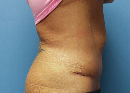 Panniculectomy Before and After Pictures Cape Girardeau, MO