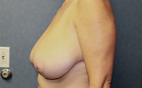Breast Reduction Before and After Pictures Cape Girardeau, MO