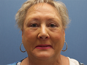 Eyelid Surgery Before and After Pictures Cape Girardeau, MO