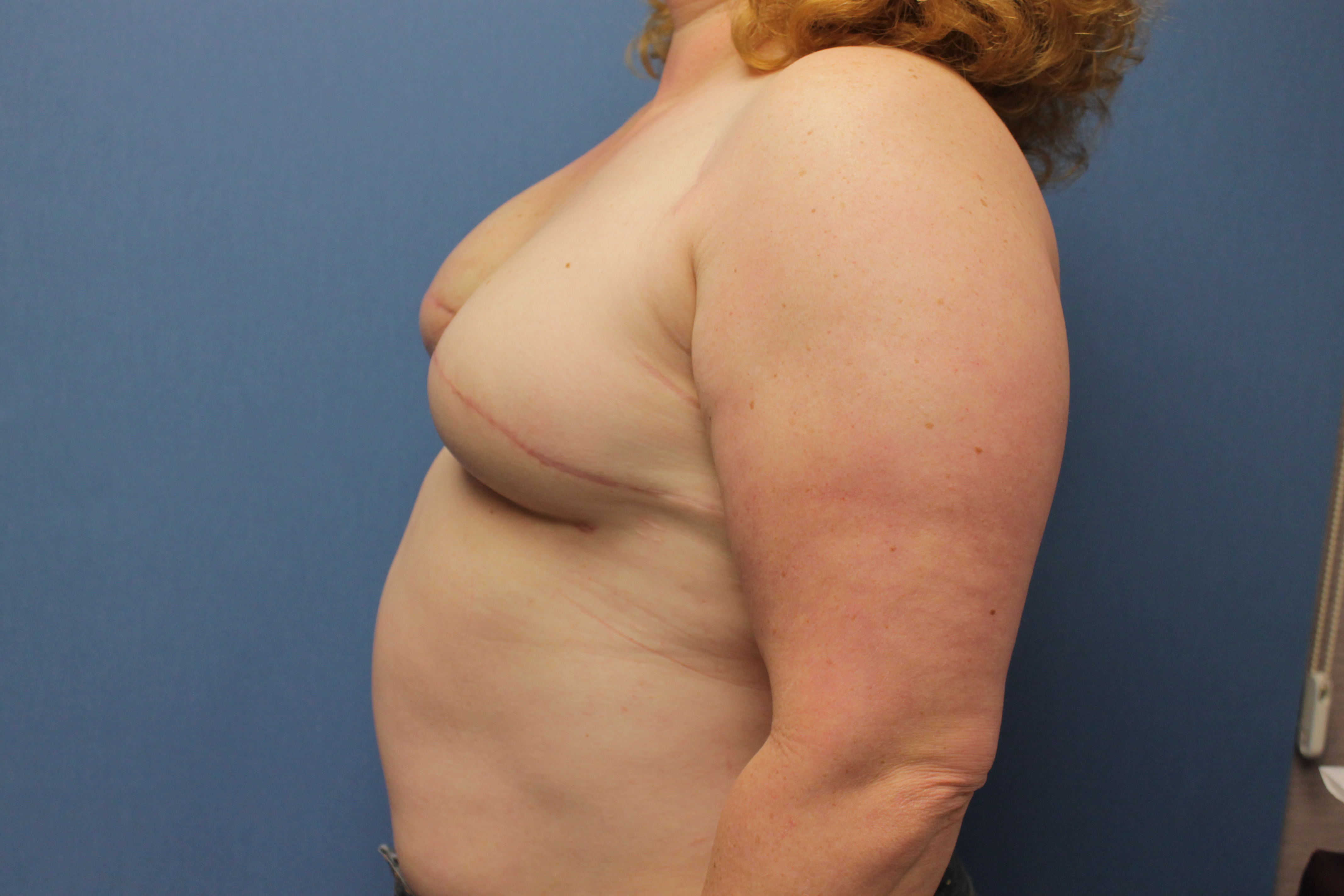 Breast Reconstruction Before and After Pictures Cape Girardeau, MO