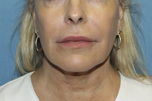 Juvederm® XC Before and After Pictures Cape Girardeau, MO