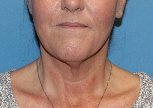 Neck Lift Before and After Pictures Cape Girardeau, MO