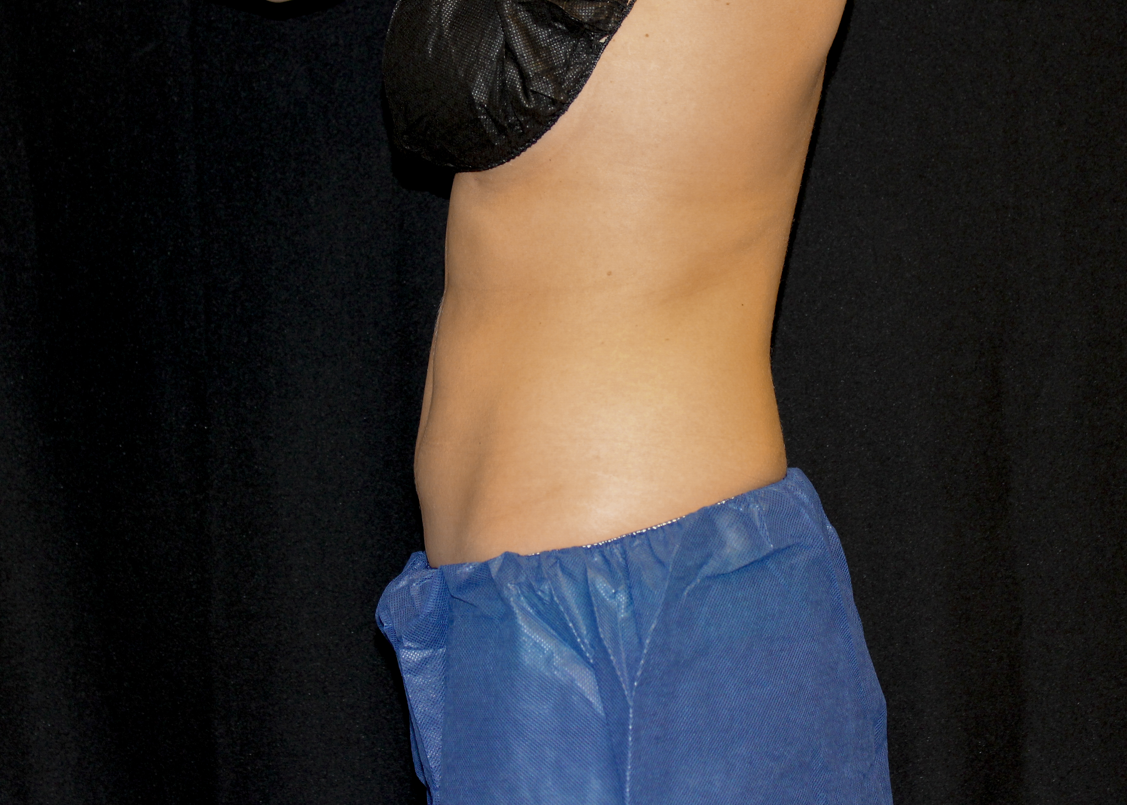 CoolSculpting® Abdomen Before and After Pictures Cape Girardeau, MO